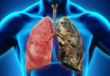 dấu hiệu ung thu phổi