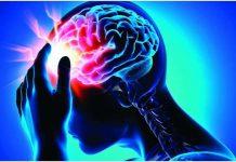 Epilepsy là gì