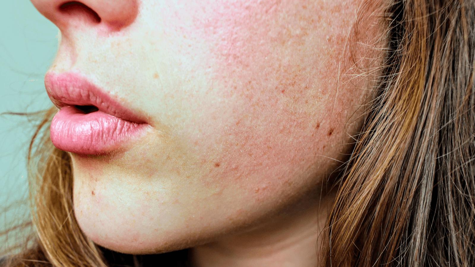 Cách trị dị ứng da mặt nhanh